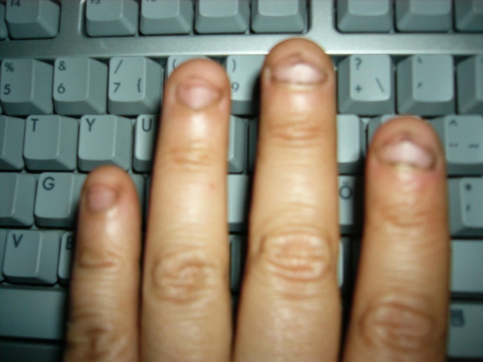 sluta bita på nagelbanden