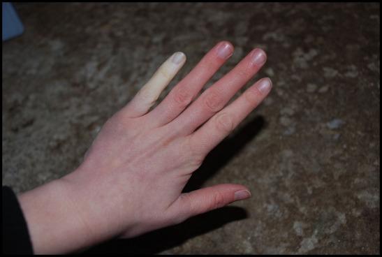 Ibland far jag blasor pa handerna efter match