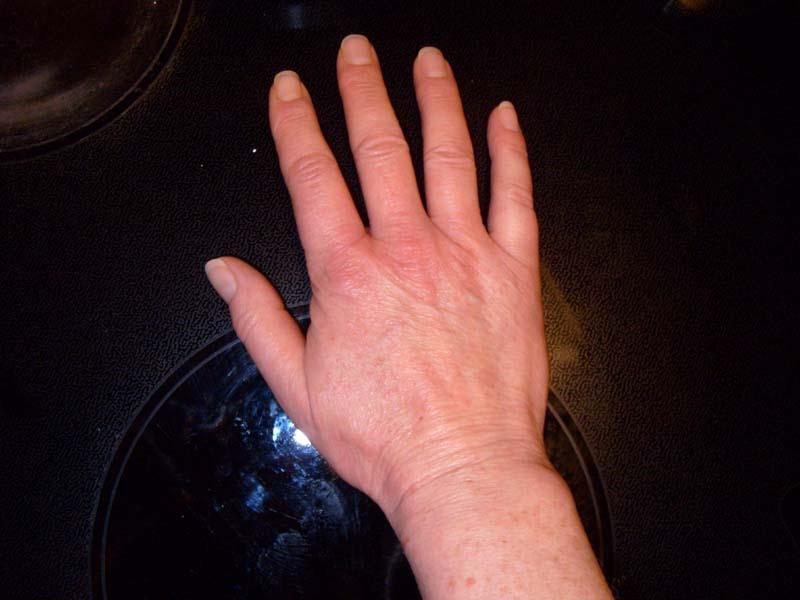 kliande blåsor på fingrarna