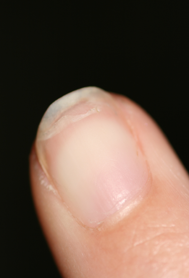 naglar skivar sig