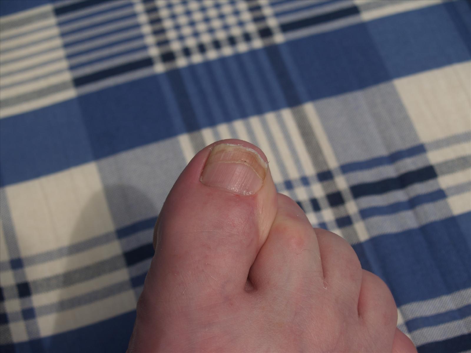 delade naglar vitaminbrist